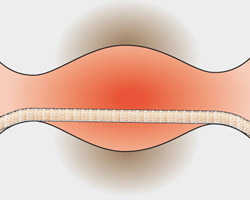 O fio dental é ineficaz